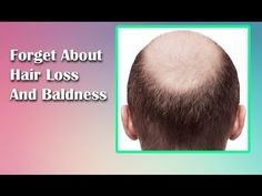 Forget About Hair Loss And Baldness! Regrow Your Hair With This Magic Re...