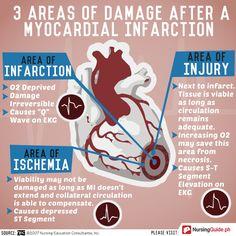 Areas of Damage after Myocardial Infarction - Nursing Guide Mobile