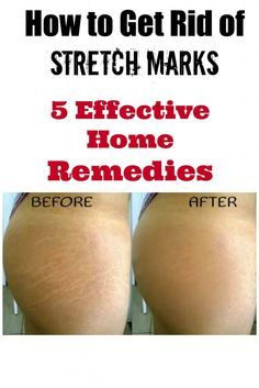 A tried and TRUE method! I used these 5 home remedies on my thighs and within 3 weeks the difference was INSANE! I can't believe I actually waited this long to try it out but it worked better than anything I've tried before! Now onto week 4 and I can tell that within 2 more weeks I'll be absolutely stretch mark FREE!