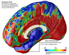 Impact of drugs on the human brain