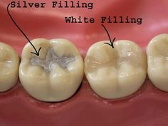 Cosmetic Dentistry NYC offers tooth colored fillings in New York, Manhattan. Tooth colored fillings look and feel more natural and are preferred by most patients. Best Dentist, Dentist In, Dental Fillings, Dental Procedures, Dental Crowns, Dental Care, Dental Teeth, Dental Hygiene, Dental Services