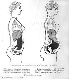 compression et déformation du foie par le corset