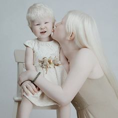 Against all odds, Asel and Kamila Kalaganova were born into the same family 12 years apart—both with albinism. And the photographs have taken the world by storm for how beautiful they really are. Fair Complexion, Instagram 4, Two Girls, Thing 1, Beautiful Babies, Dark Skin, Catwalk, Sisters, Flower Girl Dresses