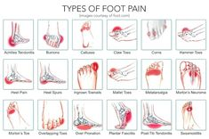 Your Feet Hurt Foot Pain Chart: common ailments and causes.Foot Pain Chart: common ailments and causes. Foot Pain Chart, Arthritis, Foot Pain Relief, Podiatry, Heel Pain, Ankle Pain, Pain Management, Feet Care, Massage Therapy