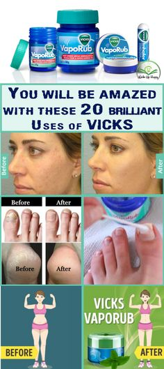 20 Surprising Uses of Vicks VapoRub You didn't Know Yet