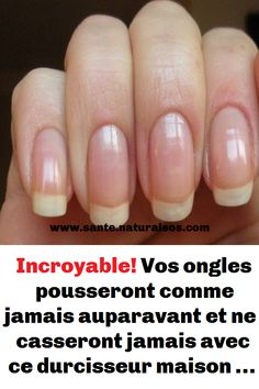 beauty care tips are offered on our internet site. Read more and you wont be sorry you did. Beauty Care, Beauty Hacks, Hair Beauty, Vaseline, Ongles Forts, Natural Hair Mask, Manicure, Nails, Teeth Whitening