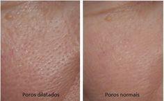 Os poros dilatados são comuns, principalmente entre as mulheres. As vezes usamos maquiagem na tentativa de atenuar-los, mas isso pode até piorar a situação.