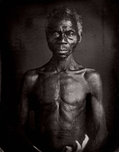 """'Renty', a slave on plantation of B.F. Taylor, Columbia, S.C., by JT Zealy, 1850 [[MORE]]  Daguerreotype of Delia, a slave woman on a plantation in Columbia, South Carolina. Delia was an American born slave, daughter of Congo born slave """"Renty"""". One of a series of photo-portraits of slaves made for Louis Agassiz in 1850 for his study of races.(nsfw)"""