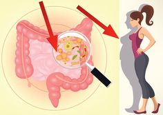 How Balancing Gut Bacteria Can Ease Autoimmune Diseases Researchers detail ways to correct gut flora imbalances and possibly ease symptoms of multiple sclerosis and other conditions. Intestino Permeable, La Constipation, Gut Microbiome, Gut Bacteria, Chronic Fatigue Syndrome, Multiple Sclerosis, Autoimmune Disease, Ulcerative Colitis, Gut Health