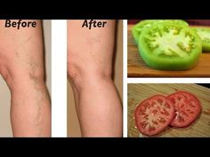 Natural Remedies Varicose Veins Varicose veins have the effect of slow walking, cramps, pain and tingling. If not treated can lead to dermatitis, varicose ulcers, bleed. Varicose Vein Removal, Varicose Vein Remedy, Varicose Veins, Natural Health Remedies, Natural Cures, Dieta Detox, Natural Treatments, The Help, Health Tips