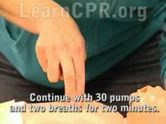 Video: Infant CPR