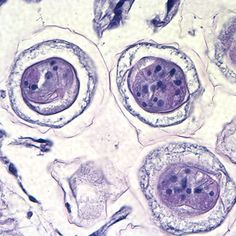 CDC - DPDx - Hymenolepiasis Medical Laboratory Scientist, Study