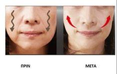 Χαλαρωμένα μάγουλα: 4 τρόποι σύσφιξης - Με Υγεία Yoga Facial, Face Yoga, Beauty Care, Diy Beauty, Beauty Hacks, Sagging Cheeks, Facial Exercises, Les Rides, Homemade Skin Care