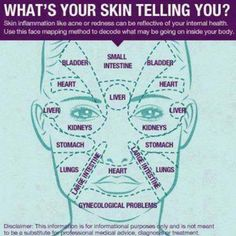 """Do you always break out in the same places? According to my Chinese medicine doctor, Dr. Wang Zheng Hu, the location of acne spots on your face can give you an indication of their underlying cause.  Your skin often reflects your internal health, so by analyzing where you get pimples and """"mapping"""" where acne pops up on your face, you can understand what's causing your acne and prevent the zits from forming! http://www.skinacea.com/acne/acne-face-map.html#.UbW6E-cwqIU"""