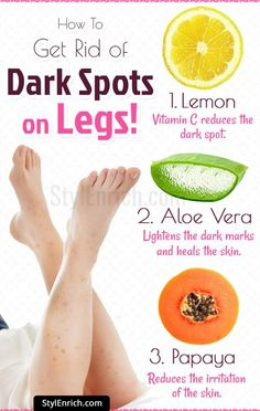 Dark spots on skin are very troublesome. Let's explore how to get rid of dark spots on legs with natural ingredients like lemon, honey, tomato and papaya. Face Scrub Homemade, Homemade Skin Care, Homemade Beauty Tips, Homemade Products, Homemade Facials, Skin Care Remedies, Natural Remedies, Sleep Remedies, Cold Remedies