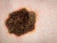 #'Tailoring' Skin Exams May Boost Melanoma Detection - Daily Journal Online: Daily Journal Online 'Tailoring' Skin Exams May Boost Melanoma…