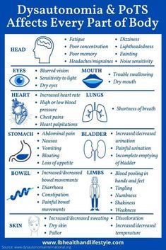 Pots Syndrome Treatment, Chronic Illness, Chronic Pain, Fibromyalgia, Endometriosis, Autonomic Nervous System, Ehlers Danlos Syndrome, Abdominal Pain