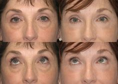 Eyelid Lift (Blepharoplasty) Photo Gallery Click thumbnails for larger images Eyelid Lift, Surgery, Photo Galleries, Gallery, Roof Rack
