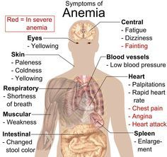 Anemia (lack of blood) symptoms can vary depending on the cause. Symptoms and signs may include fatigue, pale skin, heart palpitations, shortness of breath, and dizziness. There are several anemia types. Anemia treatment depends upon the type. Natural Treatments, Natural Cures, Natural Detox, Cure For Anemia, Causes Of Anemia, Autoimmune Hemolytic Anemia, Science Classroom, Biology, Fibromyalgia