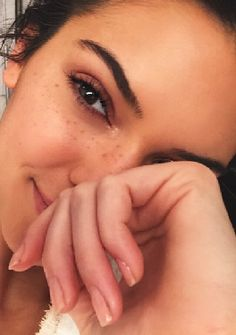 Kendall Jenner spills the beans on how she got her skin looking THIS good after acne