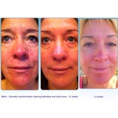 Luminesce Cellular Rejuvenation Serum Restore youthful vitality and radiance to the skin and reduces the appearance of fine lines and wrinkles Skin Detox, Under Eye Bags, New Skin, Anti Aging Skin Care, Glowing Skin, Serum, Designer, Burns Scars, Range