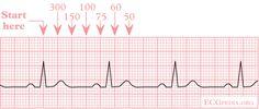 ekg normal sinus rhythm drawing nurse