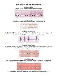 Heart block relationships