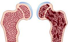 Πως το Μαγνήσιο αποτρέπει την Οστεοπόρωση