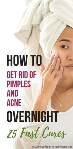 How to Get Rid of Pimples and Acne Overnight: 25 Fast Cures Suffering from stubborn acne and pimples? Discover fast and safe methods to get rid of of annoying pimples and acne virtually overnight. via Lean Healthy & Wise Brown Spots On Skin, Spots On Face, Skin Spots, Dark Spots, Acne And Pimples, Acne Skin, Oily Skin, Body Acne, Sensitive Skin