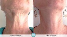 Trate de riesgo Nerium gratis! #Nerium #mexico  #Optimera www.laciesmith.nerium.com