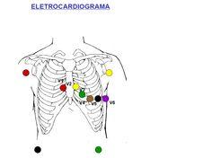 Eletrocardiograma em comodato: DISTÚRBIOS DE CONDUÇÃO FREQUENTES NOS EXAMES