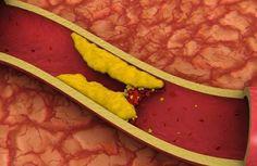 Para reduzir os triglicerídeos o colesterol e o LDL existem receitas de vários sucos que você não pode deixar de conferir!