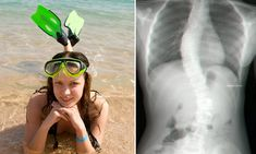 Yoga cured my curved spine: Woman who suffered scoliosis for a DECADE fixed her condition in just a MONTH with exercise