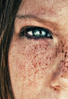beautiful face with freckles 웃 www.pinterest.com/WhoLoves/People ヅ #people #beauty