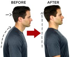 5 of the best exercises to fix your posture! Poor posture can cause neck pain, shoulder knots and headaches. Straighten out your back and correct your poor posture with these at-home exercises. Fix Bad Posture, Better Posture, Good Posture, Improve Posture, Posture Correction Exercises, Posture Stretches, Stretching Exercises, Upper Back Pain, Neck And Back Pain