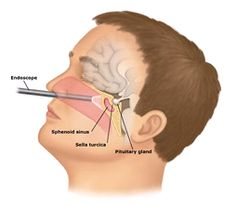 The treatment of acromegaly is usually surgery. They remove tumors from the pituitary gland by going through the nose to cut it out.
