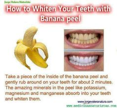 Whiten your teeth with a banana peel