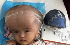 A Chinese toddler whose rare condition caused her head to swell four times its normal size is recovering after having her entire skull removed and replaced with titanium implants, Central European News (CEN) reported. 3d Printing News, 3d Printing Technology, Big Head Baby, 3d Printed Objects, Digital Fabrication, First World, Riding Helmets, New Baby Products, Tecnologia