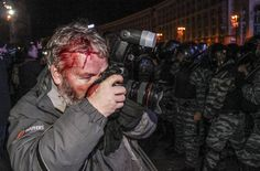 Wounded Reuters photographer Gleb Garanich, who was injured by riot police, takes pictures as riot police block protesters during a scuffle at a demonstration in support of EU integration at Independence Square in Kiev November 30, 2013. Riot police in the Ukrainian capital Kiev used batons and stun grenades to disperse hundreds of pro-Europe protesters from the city's main Independence Square, witnesses said. REUTERS/Stringer