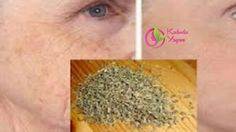 Before the wrinkles snatch the beauty of your face, treat them! You can overcome this problem at home with the help of natural remedies. Health Guru, Homemade Skin Care, Homemade Beauty, Tips Belleza, Anti Aging Skin Care, Healthy Tips, Healthy Food, Home Remedies, How To Dry Basil