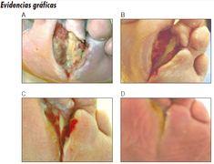 diabetes tipo 2 y erupción en el pie
