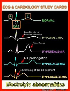 Electrolyte abnormalities on an ECG.