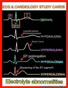 ECG and Cardiology study cards Cardiac Nursing, Nursing Mnemonics, Nursing Exam, Pathophysiology Nursing, Pharmacology Mnemonics, Neonatal Nursing, Nursing Career, Nursing Graduation, Nursing School Notes