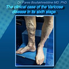 The clinical case of the Varicose disease in its sixth stage
