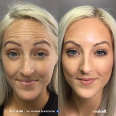 Eyebrow Shaping Discover Whats the Difference Between Botox and Jeuveau? Both neurotoxins with small differences. Cheek Fillers, Botox Fillers, Dermal Fillers, Fillers For Face, Under Eye Fillers, Cystic Acne Treatment, Face Treatment, Botox Before And After, Skin Treatments