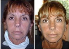 Facial Exercise: The Facial Magic Approach #facialexercise #facialmagic
