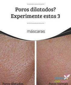 Poros #dilatados? Experimente estas 3 #máscaras Os #poros dilatados são comuns, principalmente entre as mulheres. As vezes usamos maquiagem na tentativa de #atenuar-los, mas isso pode até piorar a situação.