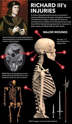 "strangeremains: ""A study of King Richard III's bones uncovered 11 injuries inflicted near the time of death by common Late Medieval weapons. Read the full article at. Tudor History, European History, British History, World History, Ancient History, History Medieval, Haunted History, Family History, History Of England"
