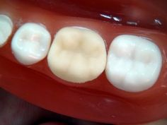 """How to make a temporary crown? """"for dental students"""" Tooth Extraction Aftercare, Tooth Extraction Healing, Dental Assistant Study, Dental Hygiene, Teeth Implants, Dental Implants, Temporary Crown, Tooth Crown, Dental Emergency"""