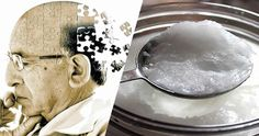 Molti medici sono d'accordo, avallati da ricerche scientifiche, sul fatto che l'Alzheimer non abbia cura, ma la dottoressa Mary Newport non è d'accordo.